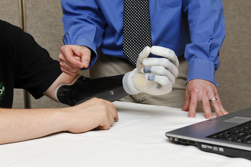 De moins en moins chères et de plus en plus performantes, les prothèses réparent les vies de personnes amputées. (photo flickr/touchbionics)