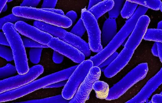 """La bactérie intestinale E. coli, sur laquelle """"Passcode"""" a été testée. (photo flickr/niaid)"""